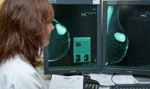 El programa de detección precoz de cáncer de mama en Castilla-La Mancha examinó en 2017 a cerca de 121.000 mujeres