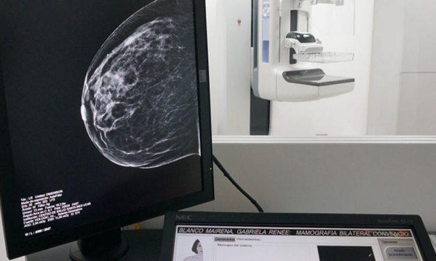 Los siete nuevos mamógrafos con tomosíntesis adquiridos por el Gobierno de Castilla-La Mancha estarán operativos en mayo