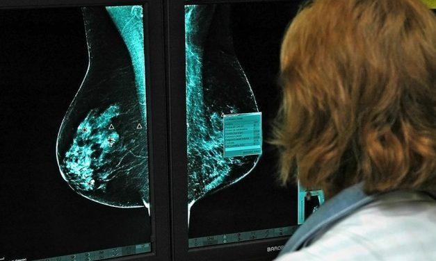 El Hospital General Universitario de Ciudad Real abre una nueva línea de investigación sobre el cáncer de mama